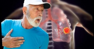 Lung cancer symptoms: The sign in your breath that could signal the deadly disease