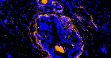 Cancerous tumors, surrounding cells illuminated by new imaging agent